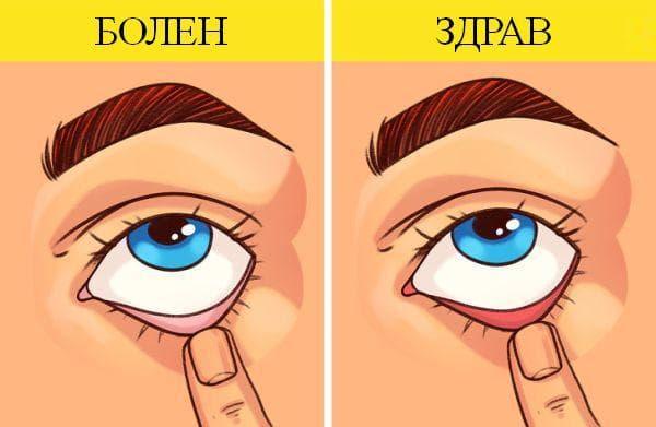Тест за анемия