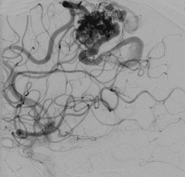 Компютърен образ на артериовенозните малформации.