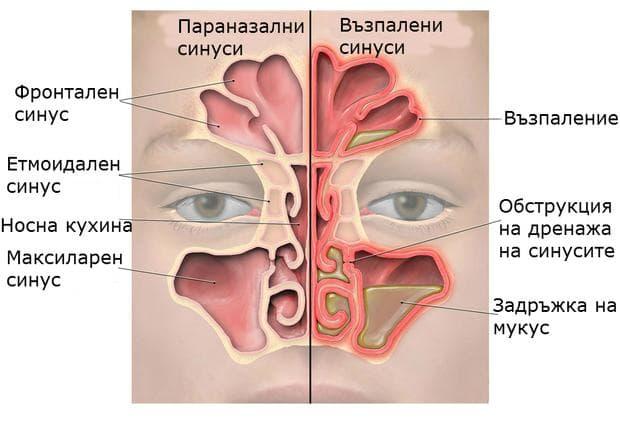 признаци на възпаление