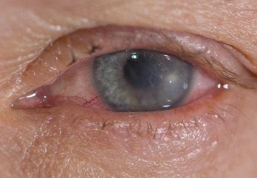 Ксерофталмия