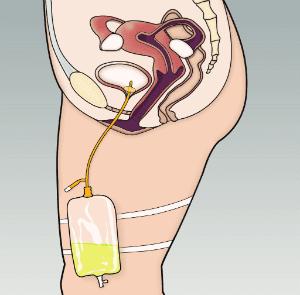 цистостома