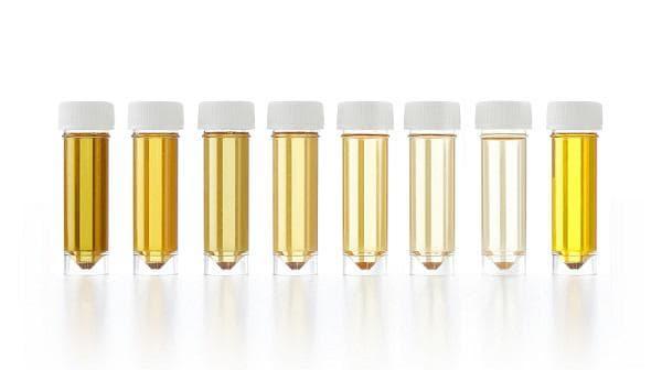 Вариации в цвета на урината