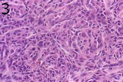 микроскопско изследване на миоепителиом