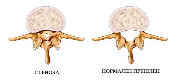 Спинална стеноза