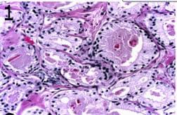 микроскопско изследване на аденоматозна хиперплазия на простатната жлеза