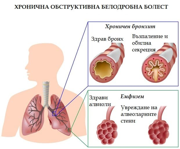 Хронична обструктивна белодробна болест
