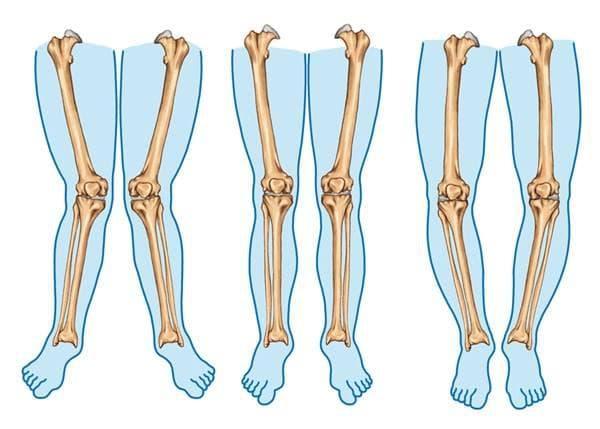 костни болести
