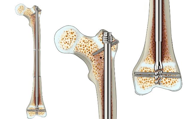 ортопедична пръчка