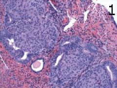 микроскопско изследване на метаплазия