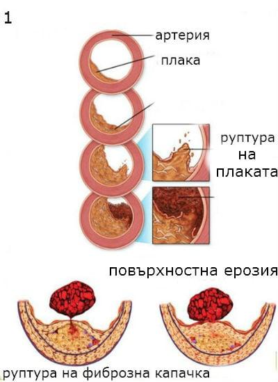 нестабилна стенокардия