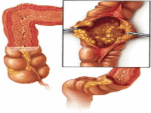 clostridium-difficile-colon