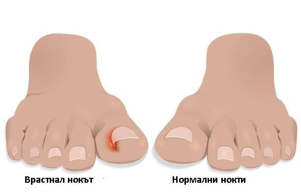 Врастнал нокът