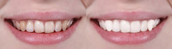 Пожълтяване на зъби