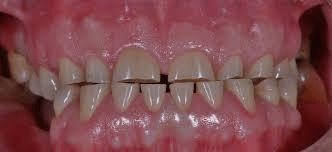 Изтъркани зъби