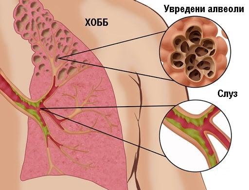 Хронична обоструктивна белодробна болест