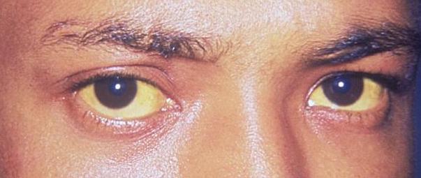 Пожълтяване на очите
