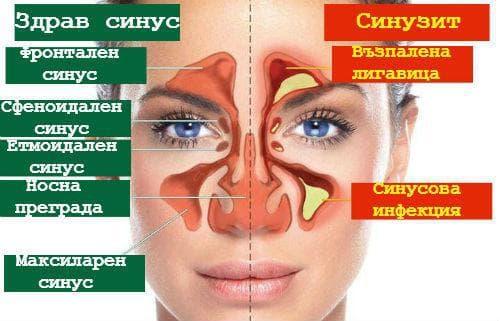 симптоми на остър синузит