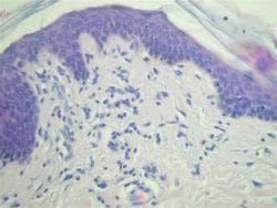 Хистопатология на erythema gyratum repens