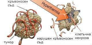 терапия чрез хипертермия при рак