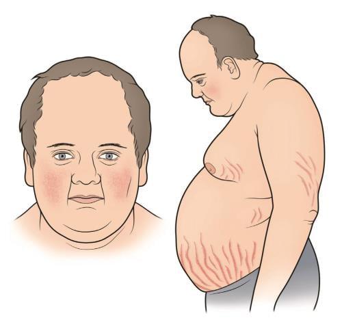 Синдром на Кушинг