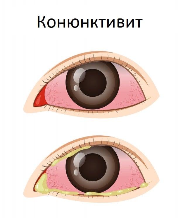 Конюнктивит