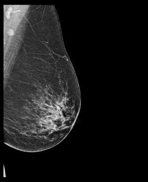 Нормална мамография
