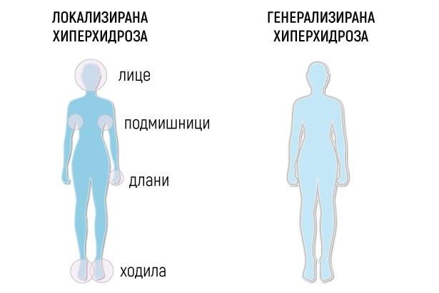 Локализирана и генерализирана хиперхидроза