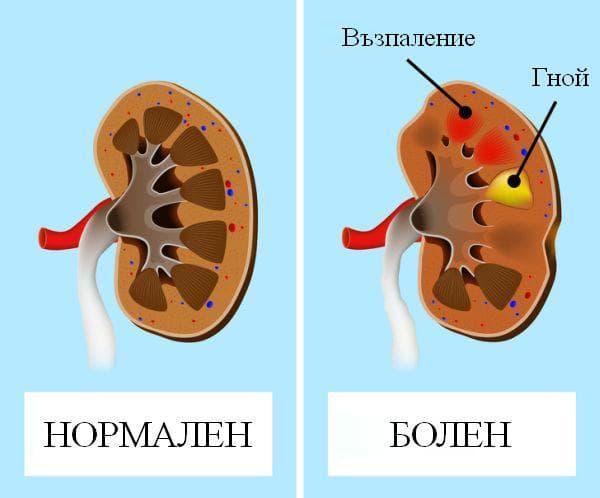 Бъбречно заболяване