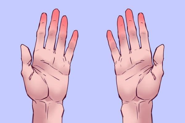 Зачервени пръсти