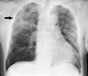 Рентгеново изследване на белите дробове