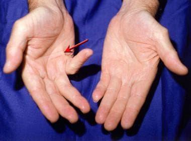 мултипленна фибросклероза