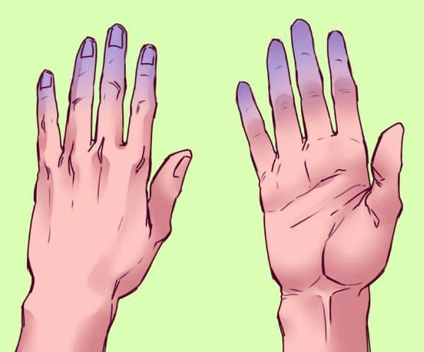 Бледи и цианотични пръсти