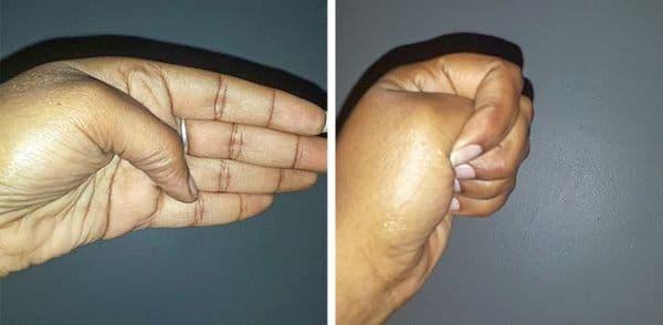 Стискане на палеца на лявата ръка
