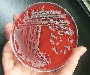staphylococcus_aureus