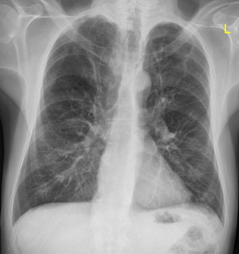 Рентгенография при емфизем