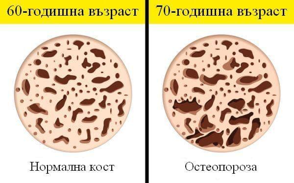 Промени в тялото от 60 до 70-годишна възраст
