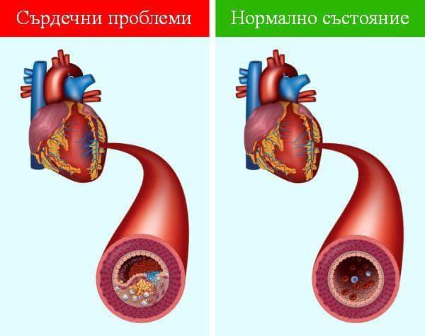 Предотвратяване на сърдечни заболявания