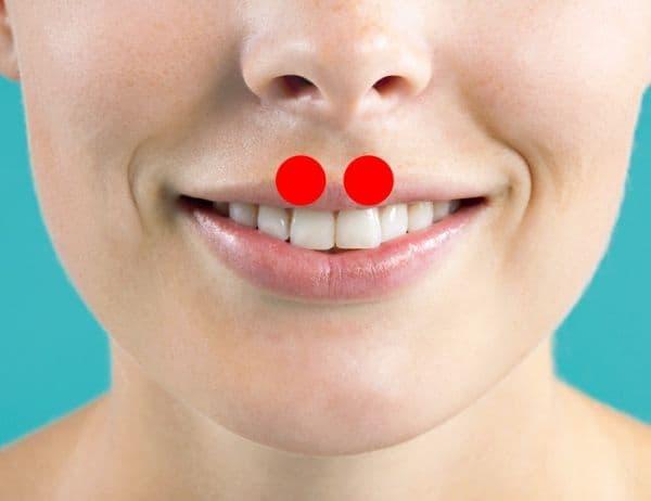 Натискане на горната част на венците