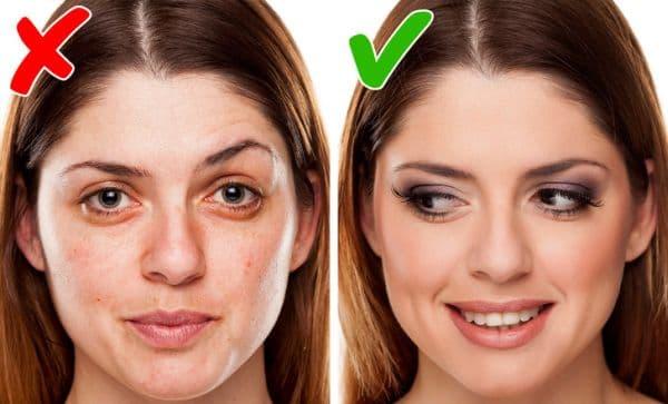 Подхранване на кожата