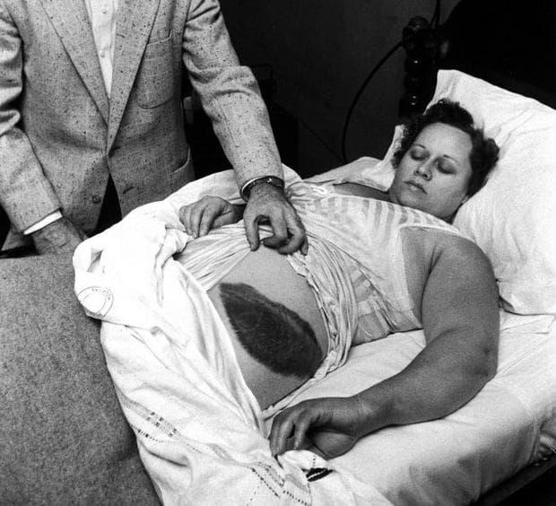 Ан Ходжис в болницата