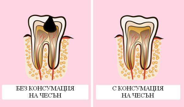 Облекчаване на зъбобола с чесън