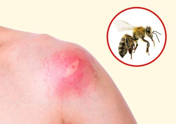 Ужилване от пчела