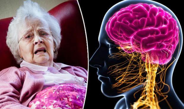 деменция при други болести, класифицирани другаде