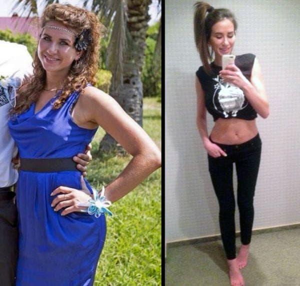 Затлъстяване и наднормено тегло