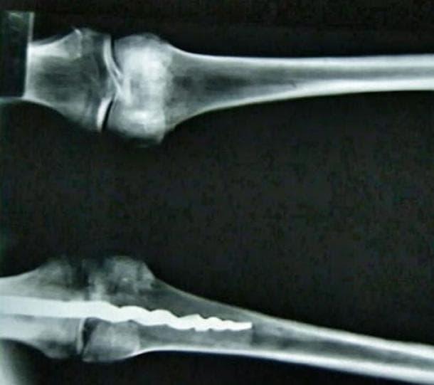 Рентгенова снимка на мумията