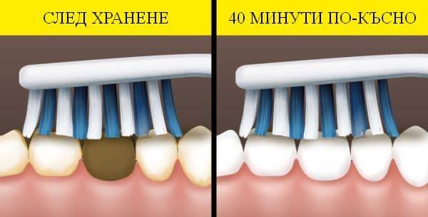Миене на зъбите след хранене