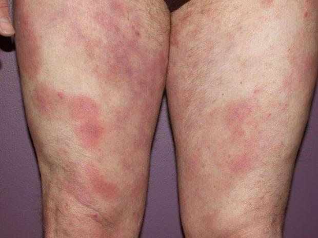 артрит при микози