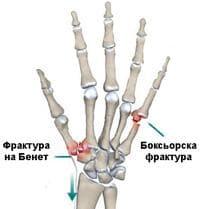 Счупване на метакарпални кости