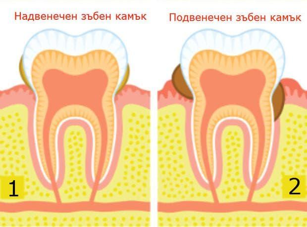 Видове зъбен камък