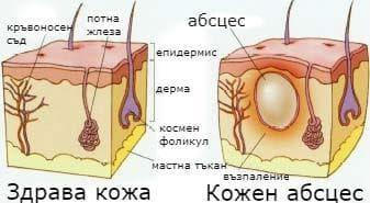 Кожен абсцес и здрава кожа